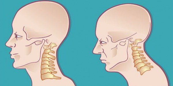 How to treat cervical discopathy